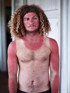 sunburn-pictures-dumpaday-2